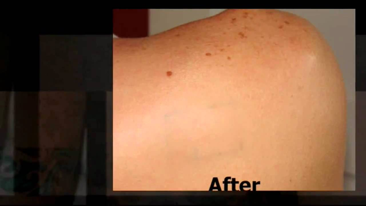 Tattoo Removal Cream - YouTube