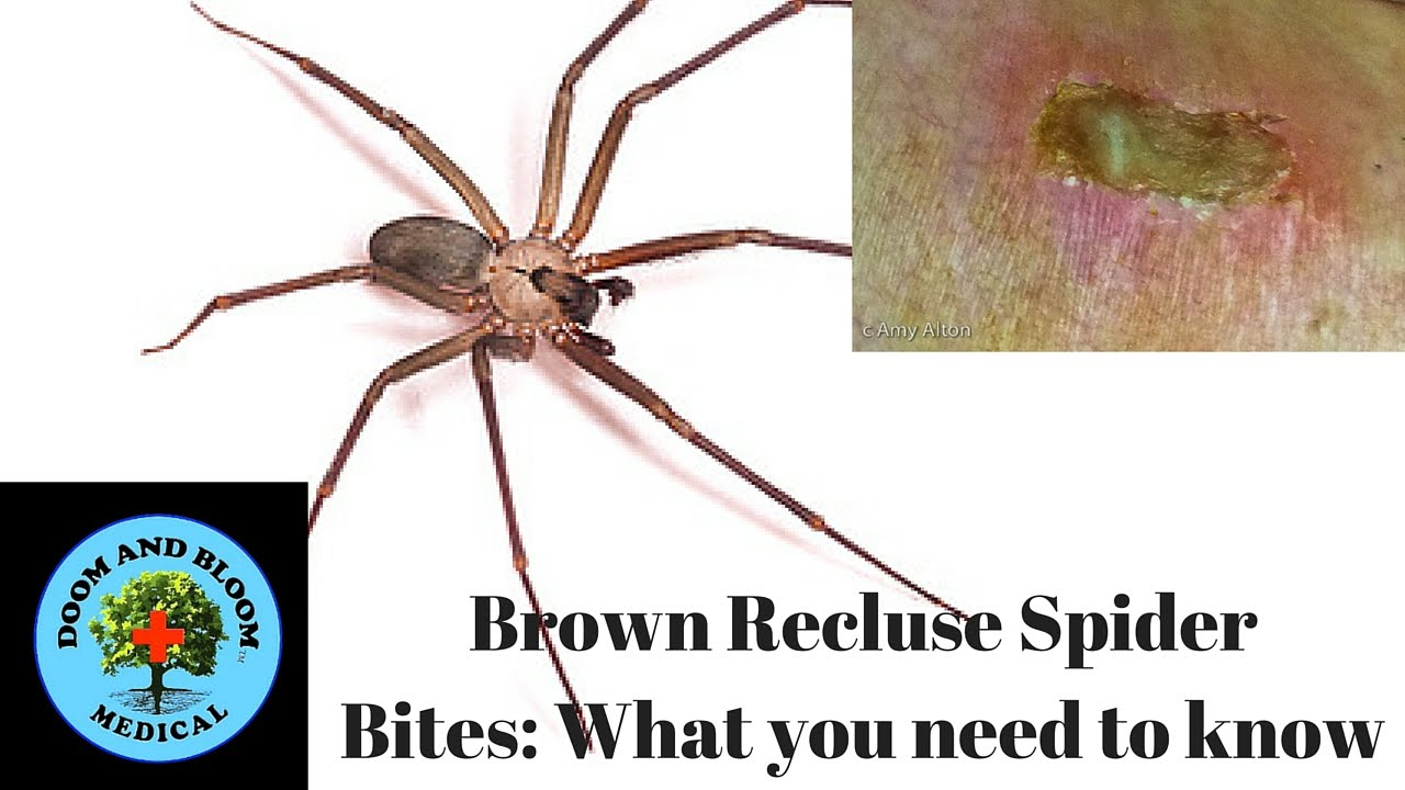 Brown Recluse Spider Bites What You Need To Know Youtube
