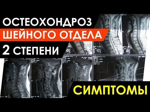 Остеохондроз шейного отдела 2 степени симптомы