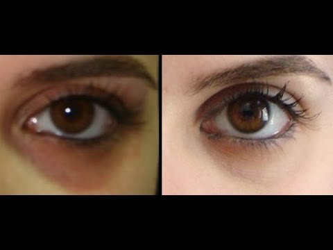 How To Get Rid Of Dark Circles Naturally Youtube