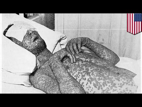 Not just smallpox: FDA finds more deadly viruses in National Institutes of Health lab, Maryland