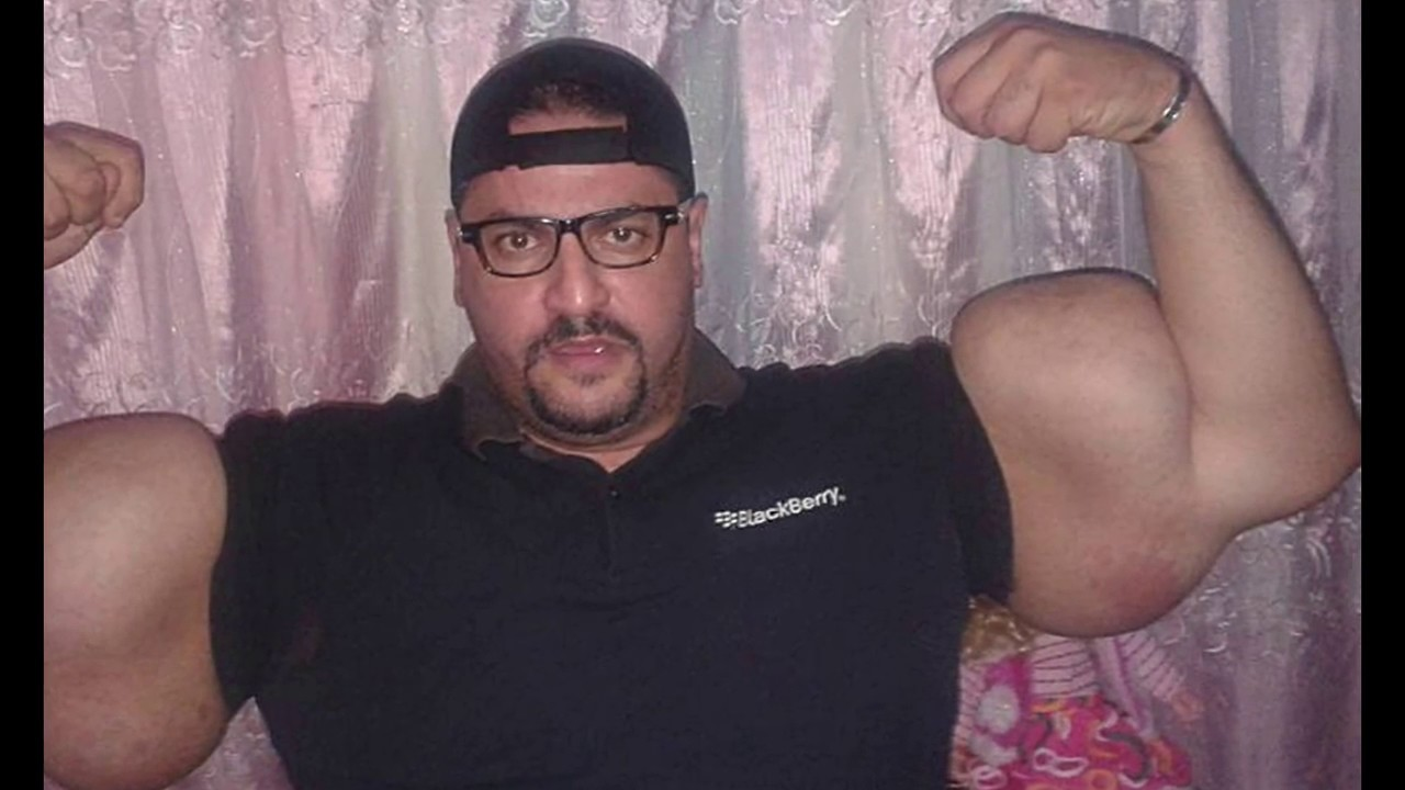 synthol man biggest biceps in the world !! - 3ajaib wa ...
