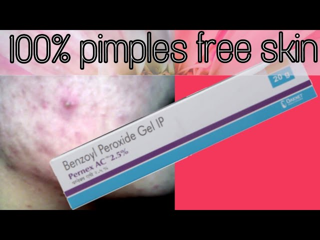 Benzoyl Peroxide Gel For Acne & Pimples Treatment Review in hindi