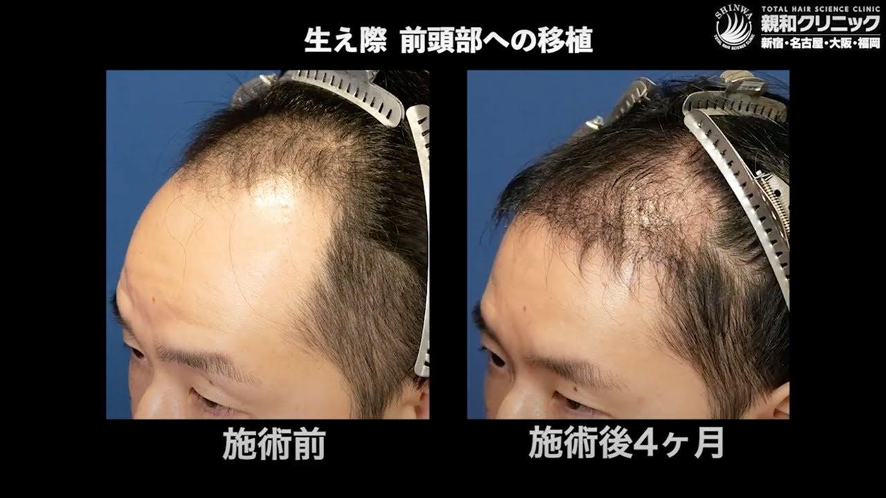 自毛植毛手術から4ヶ月後、生え際 前頭部に2000株移植「1年後、他のヘアスタイルにも挑戦したい!」【 新宿・名古屋・大阪・福岡 】