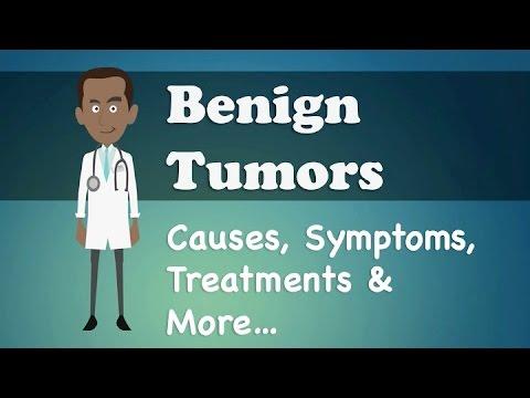 Benign Tumors - Causes, Symptoms, Treatments & More…