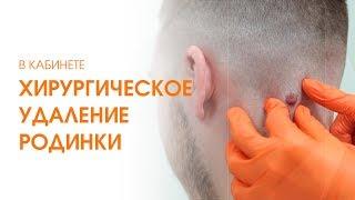 Удаление родинок хирургическим путём: удаление родинки на голове отзыв - Дмитрий Бедняков. Линлайн