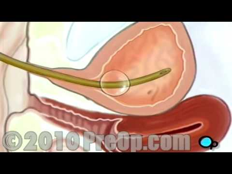 Cystoscopy Female Vaginal w/PostCare Patient Education