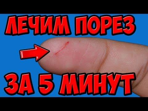 Болит рана на пальце