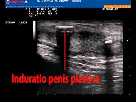 ecografia peneana peyronie