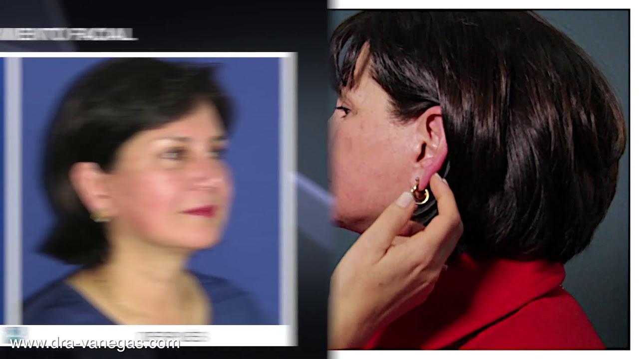 Testimonio de rejuvenecimiento facial y rinoplastia con fotos del antes y el despu s