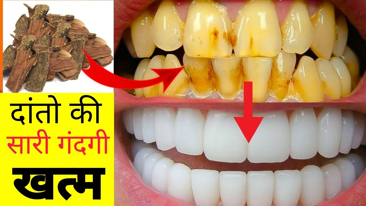 सिर्फ 2 मिनटों में पीले गंदे दांतों को मोती की तरह चमका देगा ये नुस्खा | White Teeth home remedy