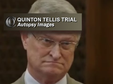 Jessica Chambers Trial-DR. HICKERSON (Autopsy pics)-(Day 3)