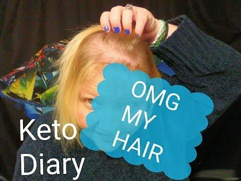 keto-diary;-omg-my-hair-(keto-hair-loss?)