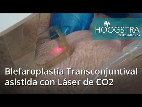 Blefaroplastía Transconjuntival asistida con Láser de CO2 (16057)