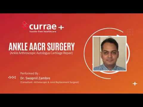 Ankle Arthroscopic Autologous Cartilage Repair (AACR)   Dr. Swapnil Zambre