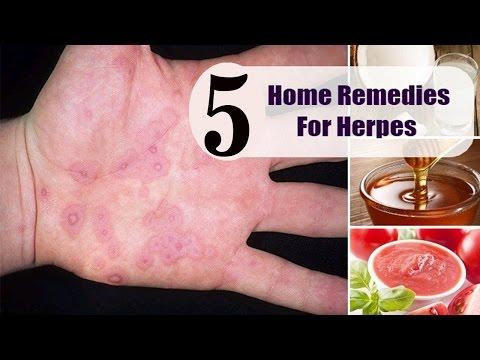 Eleutherococcus senticosus herpes dating