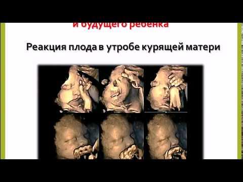 Курение и репродуктивное здоровье.