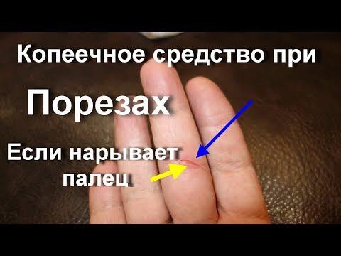 Уколола палец болит и опух