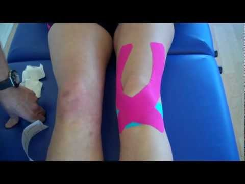 How to apply Kinesiology Taping for Knee Pain - Patella ...
