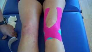 How to apply Kinesiology Taping for Knee Pain - Patella tendonitis and Patella femoral pain