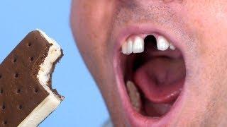 Ice Cream Breaks Tooth!