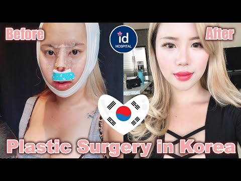Plastic Surgery In Korea Pt  2 Before & After, Recovery, V Line And Rhinoplasty   ID Hospital