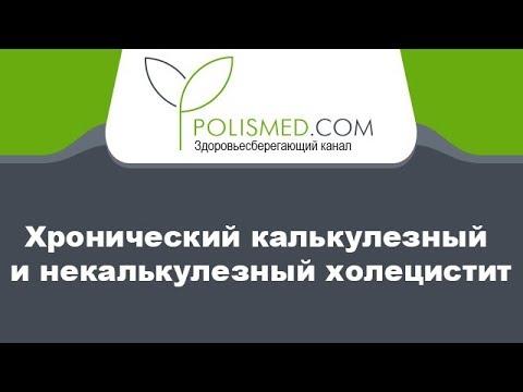 Хронический калькулезный (каменный) и некалькулезный (бескаменный) холецистит