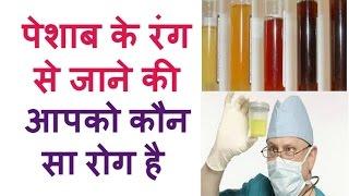पेशाब के रंग से जाने की आपको कौनसा रोग है Deasese Test By Urine