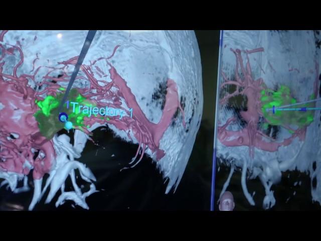 Laser Ablation Neurosurgery