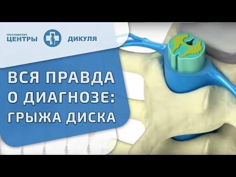 🙌 Методика консервативного лечения грыжи межпозвонковых дисков. Лечение межпозвонковой грыжи. 12+