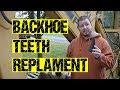 Easy Backhoe Teeth Replacement