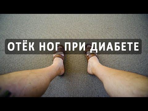 Отеки ног при сахарном диабете