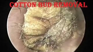 Oto-endoscopic Removal of Forgotten Stuck Cotton bud mixed with Earwax & Hair from ear