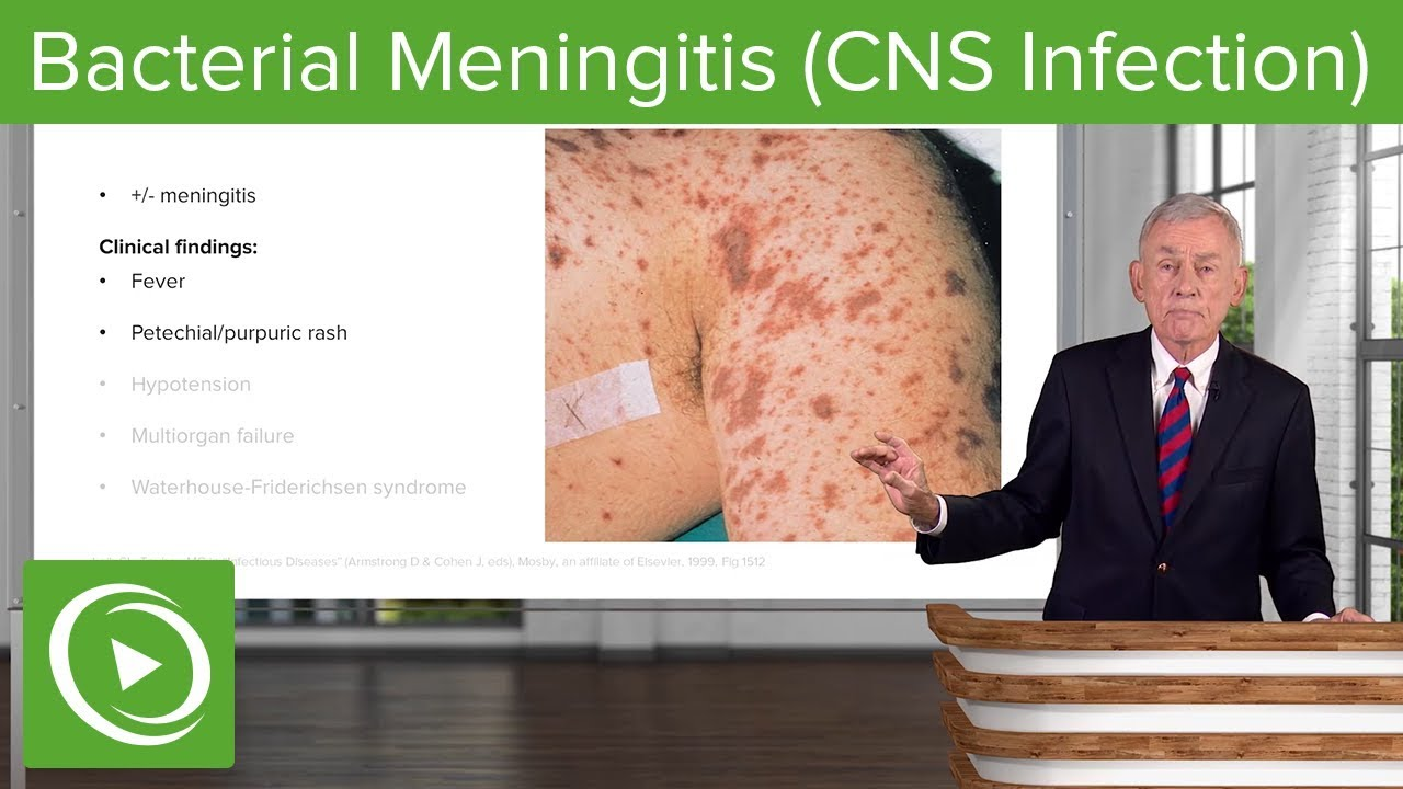 Bacterial Meningitis (CNS Infection) – Infectious Diseases | Lecturio