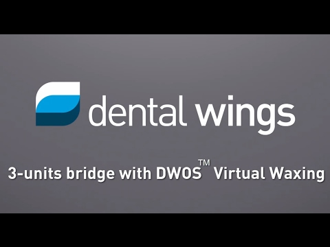 How-to design a 3-units bridge with DWOS™ Virtual Waxing