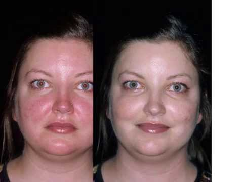 Adult Rosacea Before After Treatment Youtube
