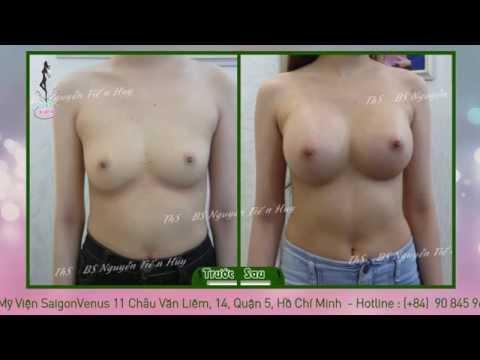 Nâng ngực nội soi Công nghệ mới nhất đẹp tự nhiên tại Thẩm mỹ viện Sài Gòn Venus