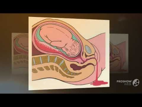 Беременность 36 недель болит низ живота и поясница