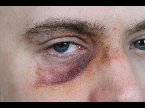 Black Eye Makeup: SFX Beginner's Tutorial