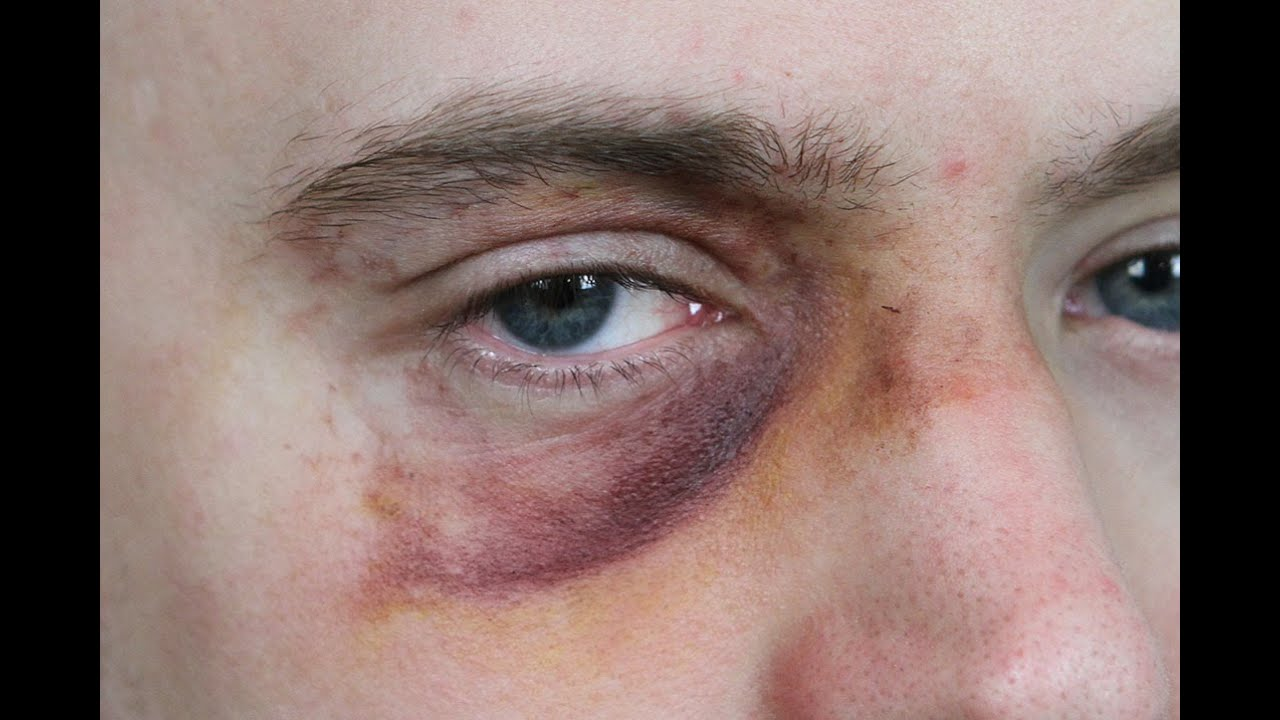 Why do swingers with blackeyes
