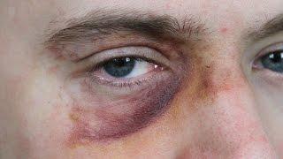 Black Eye Makeup: SFX Beginner's Tutorial