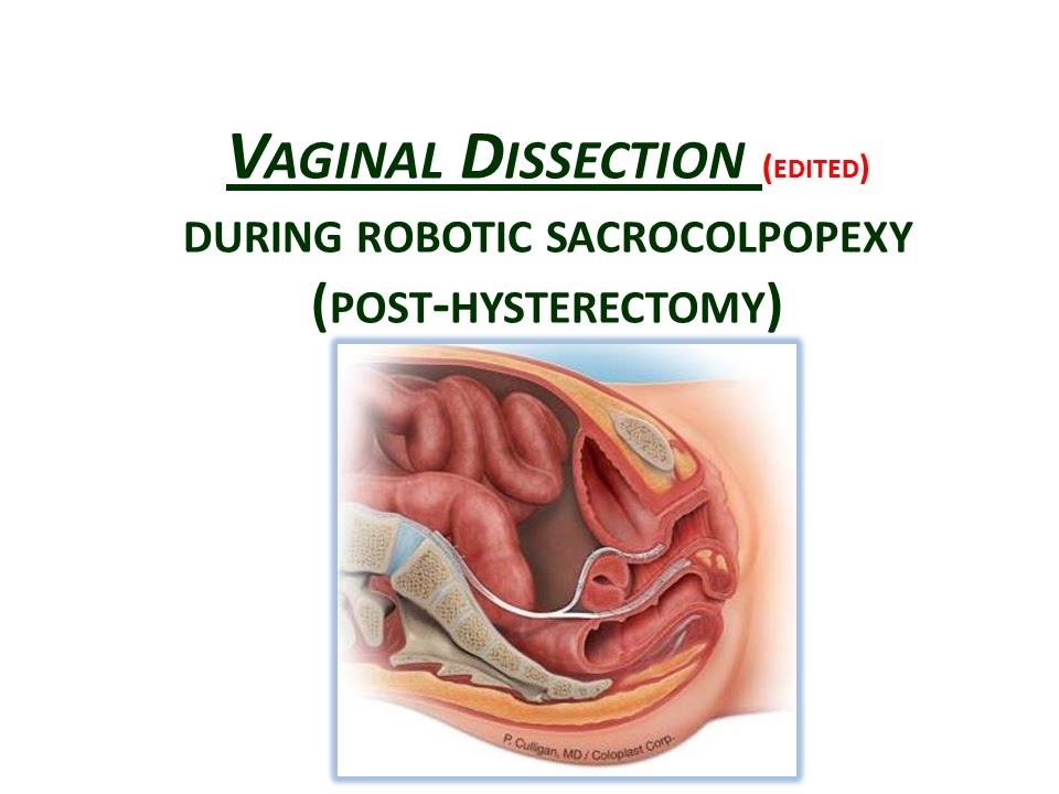 VAGINAL DISSECTION (edited) for a Robotic sacrocolpopexy (post ...