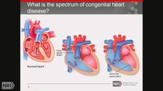 Demystifying Medicine 2016: Progress in Understanding Congenital Heart Disease