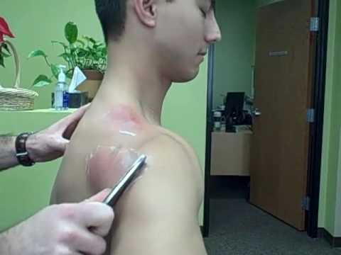 Dr. Josh Bross Shoulder Treatment