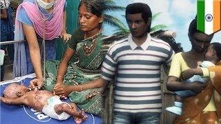 """Родители в Индии уверяют, что их дети самовозгораются(В больницу Ченнаи (Мадрас) поступил 6-дневный младенец с ожогами ножек. По словам его родителей, малыш """"само..., 2015-01-27T04:30:55.000Z)"""