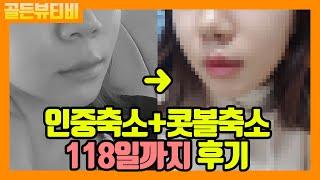 [골든뷰]코밑절개 인중축소+콧볼축소 118일차까지