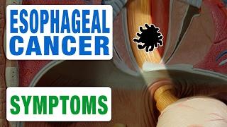 Esophageal Cancer - All Symptoms