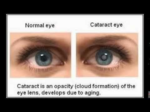 Cataracts In The Eyes