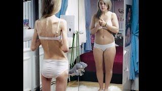Правильное Похудение , что делать если не получается похудеть , как похудеть если вес стоит