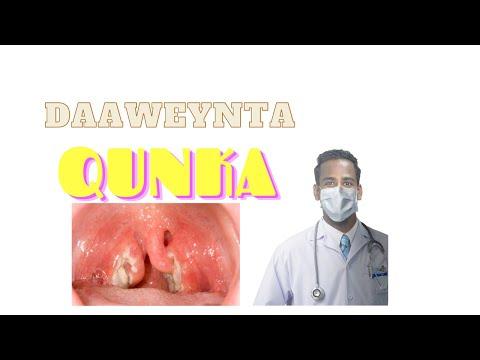 Daweeynta Qunka Tonsilitis
